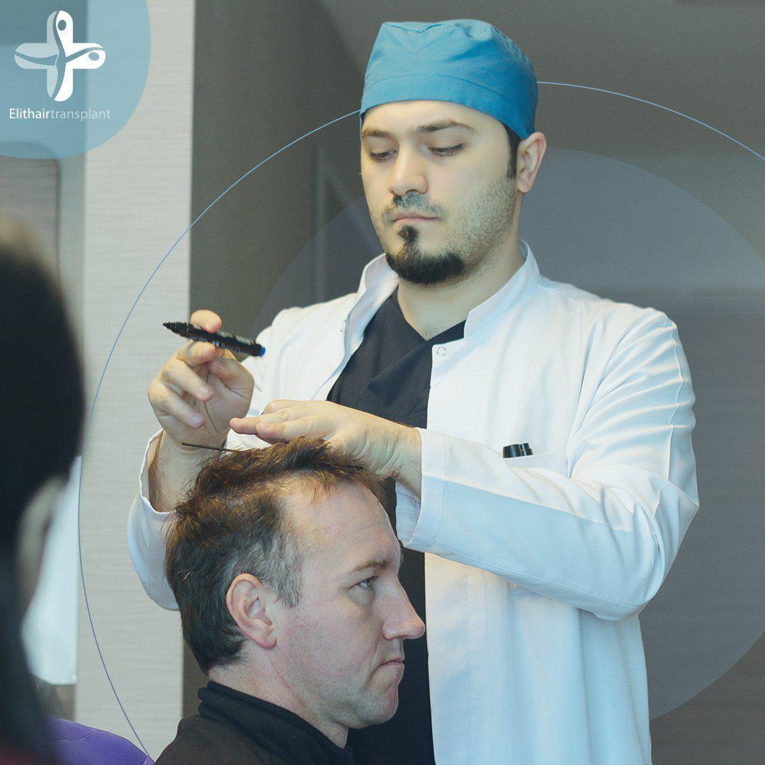 Volles und kräftiges Haar zählt heute zu den Attributen eines vitalen, gesunden, erfolgreichen und selbstbewussten Mannes.